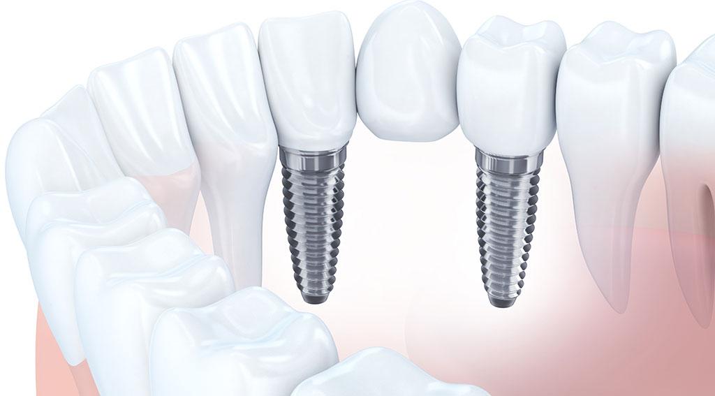 インプラントと差し歯の違い