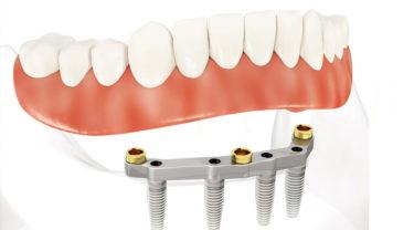 インプラントによる入れ歯