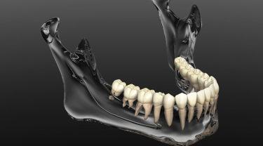 インプラントと骨粗鬆症の関係